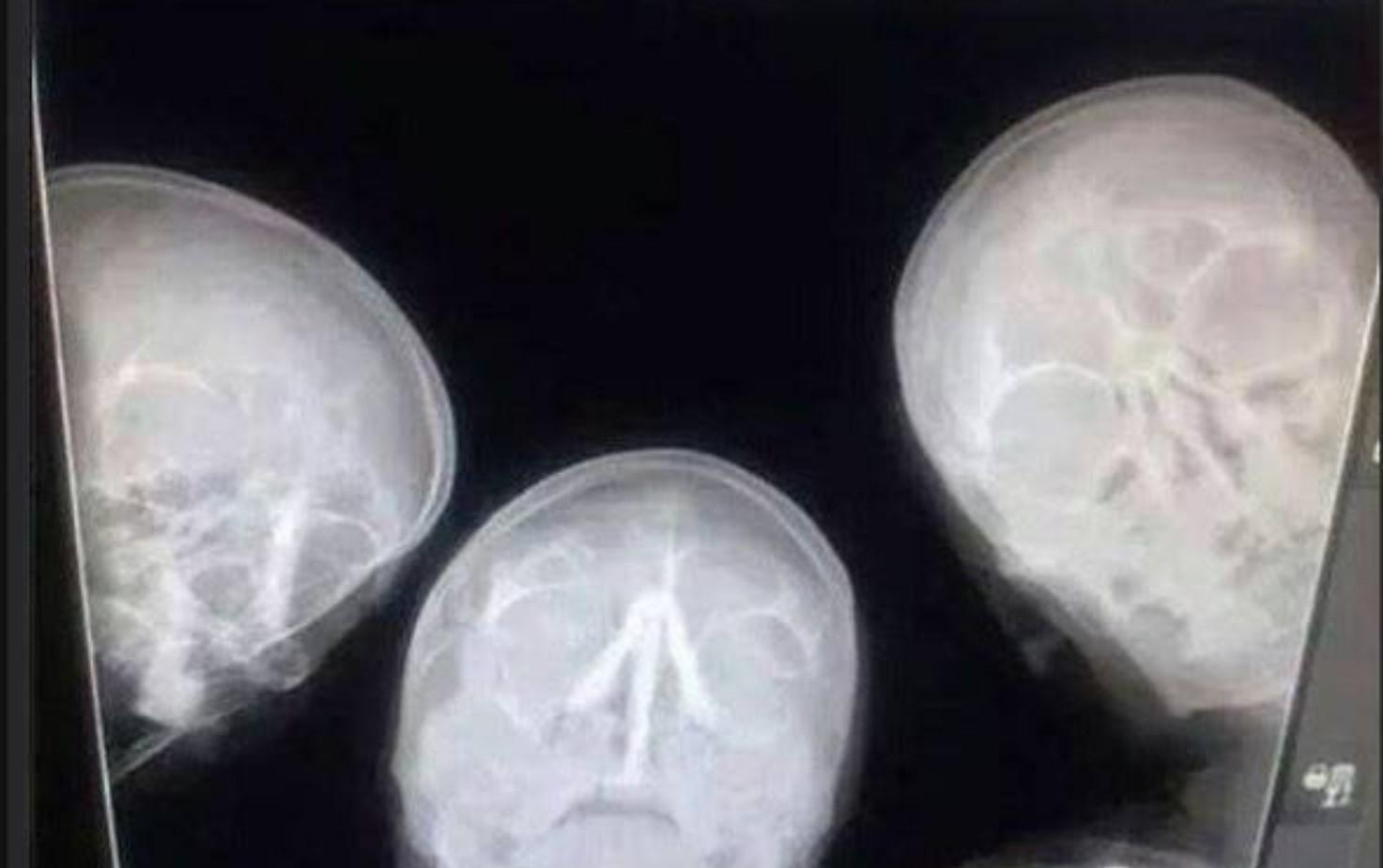 Учёные ищут способ снизить количество радиации при рентгеновских снимках - 1