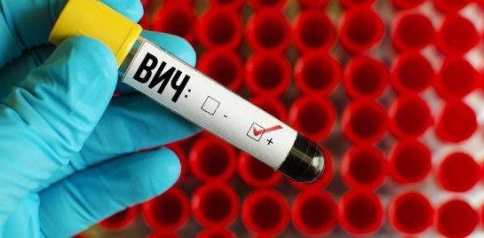 Американские ученые поняли, как работает ВИЧ