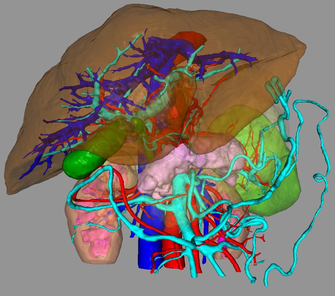 Сегментация томографических данных - 1