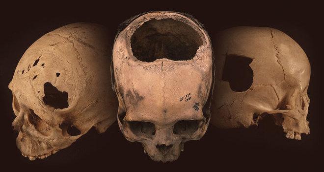 Врачи инков оказались мастерами трепанации черепа