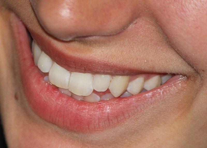 Широкая улыбка повлияла на узнаваемость лица