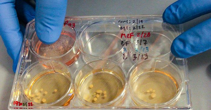 Ученые вырастили клетки мозга неандертальца