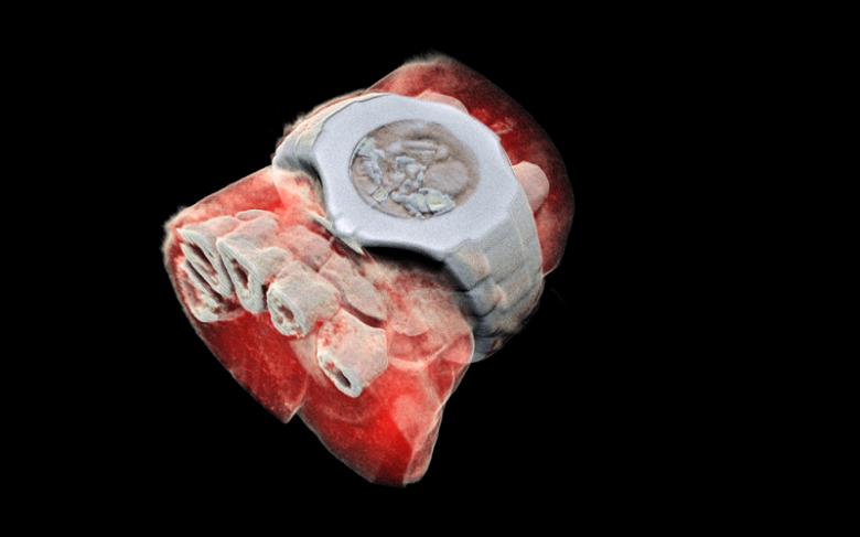 Технологии CERN позволили получить первый трехмерный цветной рентгеновский снимок человека