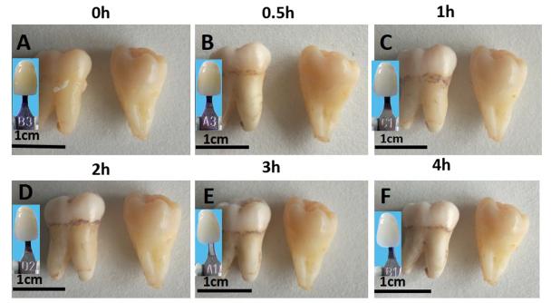 Китайские ученые предложили отбеливать зубы наночастицами