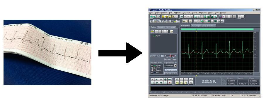 Как звучит сердцебиение: перевод бумажной кардиограммы в WAV-формат - 1