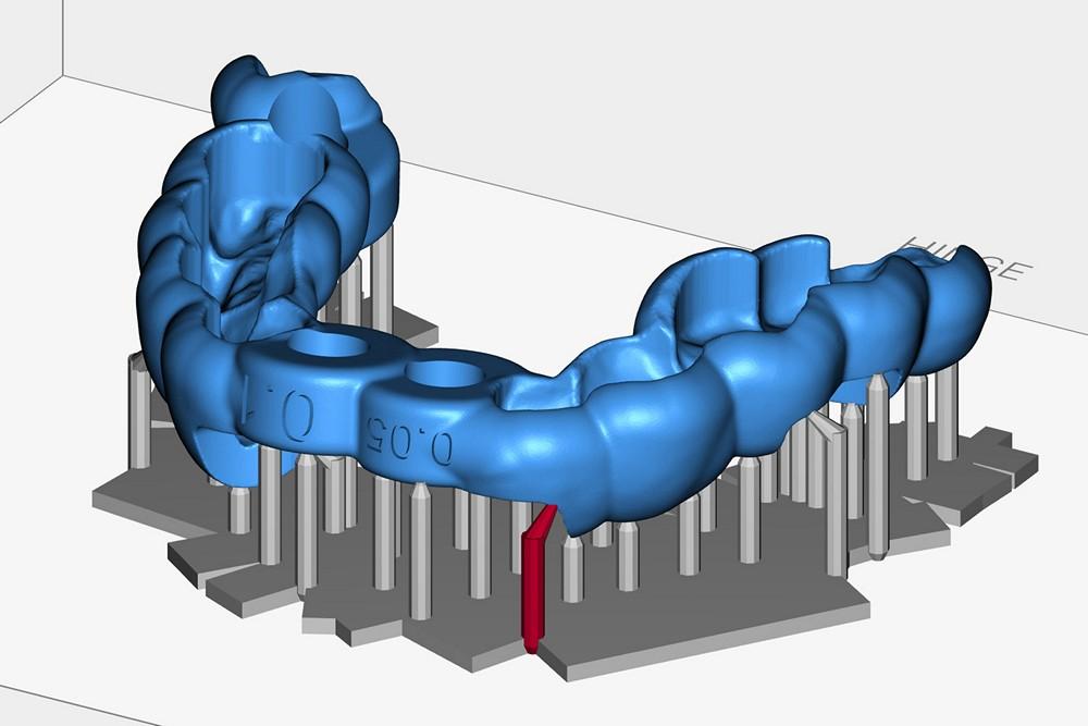 Анонс стоматологического фотополимерного 3D-принтера MoonRay S - 12