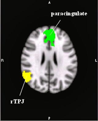 Тренировка эмпатии: стимуляция нейронных связей мозга посредством видеоигры - 6