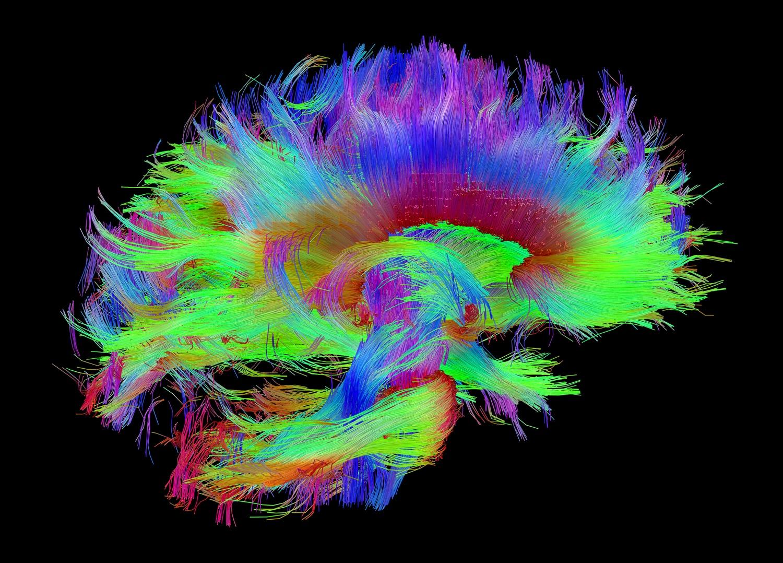 «Функциональный отпечаток» мозга может служить его идентификатором в течение всей жизни - 4
