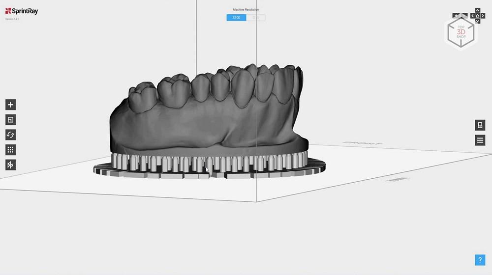 Убийца Form 2? Обзор 3D-принтера MoonRay S100 для стоматологов - 18