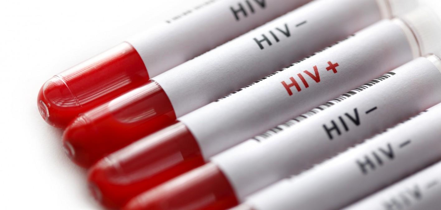 Анализ скорости молекулярных микромоторов для диагностики ВИЧ - 1
