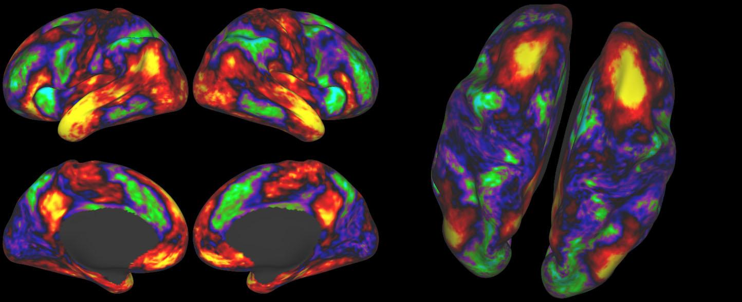 Научные способы улучшить внимание: ноотропы, нейроинтерфейсы и электростимуляция - 1
