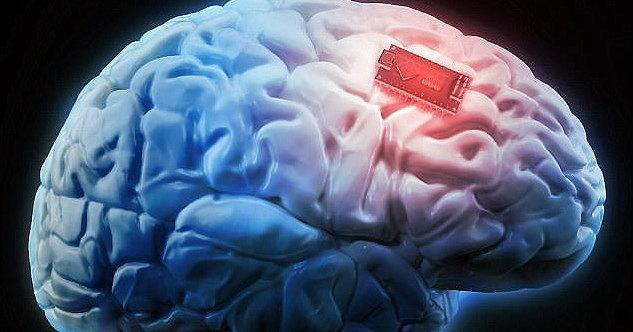 Ученые разрабатывают мозговой имплантат для перевода мыслей в речь