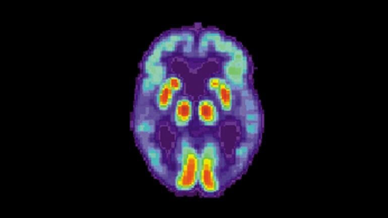 Искусственный интеллект научился находить болезнь Альцгеймера в мозге за 6 лет до диагноза - 1