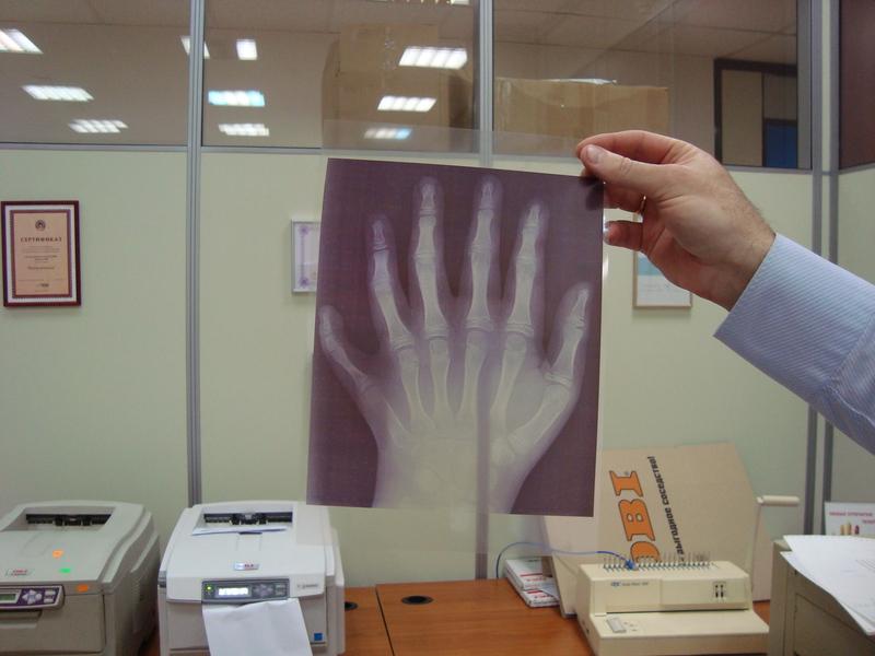 DICOM — Какая печать нужна медицине?