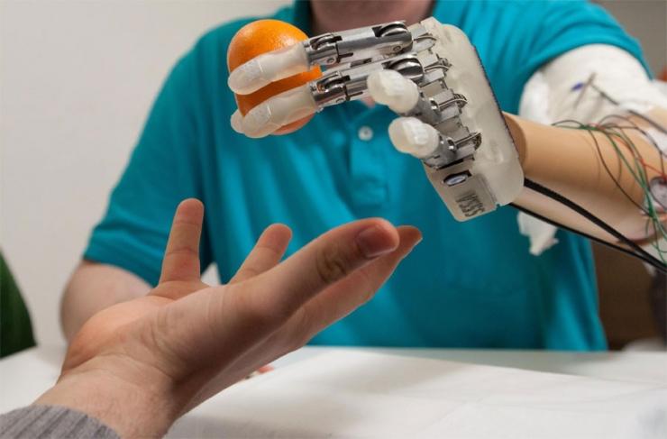 Бионический протез руки возвращает ощущение прикосновения
