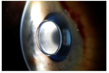 Имплантация крошечного телескопа сможет вернуть зрение пожилым людям