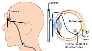 Argus II Retinal Prosthesis System были впервые имплантированы